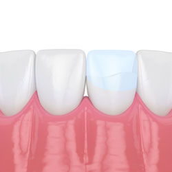 Common procedures west princeton dental clinic birmingham al bonding is a conservative way to repair slightly chipped discolored or crooked teeth during dental bonding a white filling is placed onto your tooth to solutioingenieria Gallery