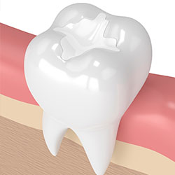 Common procedures west princeton dental clinic birmingham al crowns are a restorative procedure used to improve your tooths shape or to strengthen a tooth crowns are most often used for teeth that are broken worn solutioingenieria Gallery